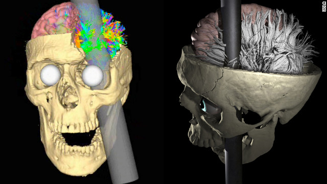 phineas gage unlucky or lucky Was phineas gage lucky or unlucky i would have to say he was nether lucky or unlucky because i don't believe in luck so in my head luck is like saying that you won a million dollar off of a raffle ticket it just happens.